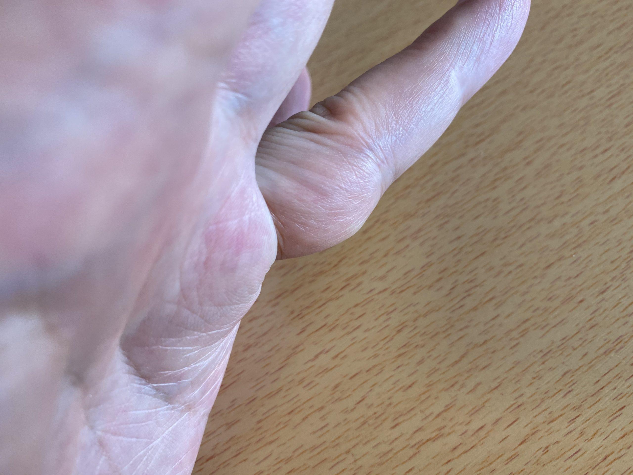 リウマチ指の変形の前兆
