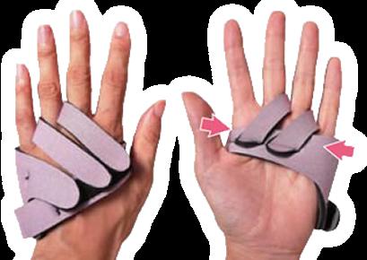 リウマチ母指装具と尺側偏位予防防具