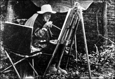 リウマチ画家ルノアール手の変形